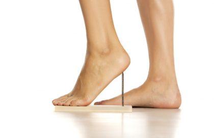 3 טיפולים אפקטיביים בנושא דורבן ברגל